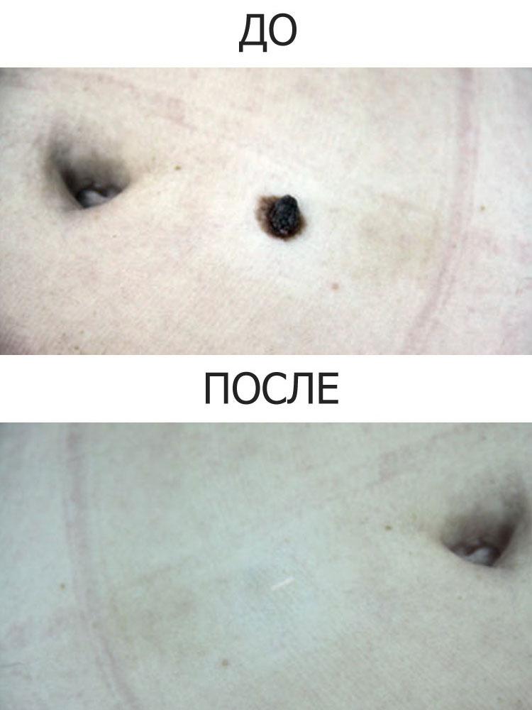 Соскоб на папилломавирус